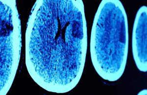 Head and Brain Injury Claim